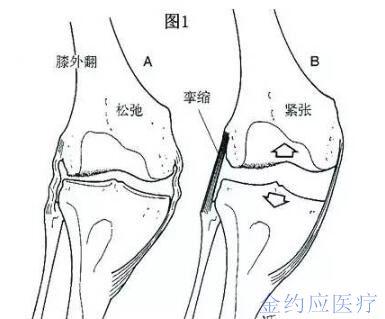 膝关节弯曲后结构图